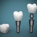 implantologie_bayreuth_baumann_02